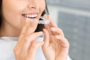 5 cosas que deberías saber sobre la Ortodoncia Invisible
